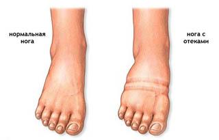 При беременности судорога ног