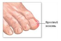 Можно ли вылечит грибок ногтя